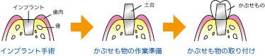 20070613115137.jpg